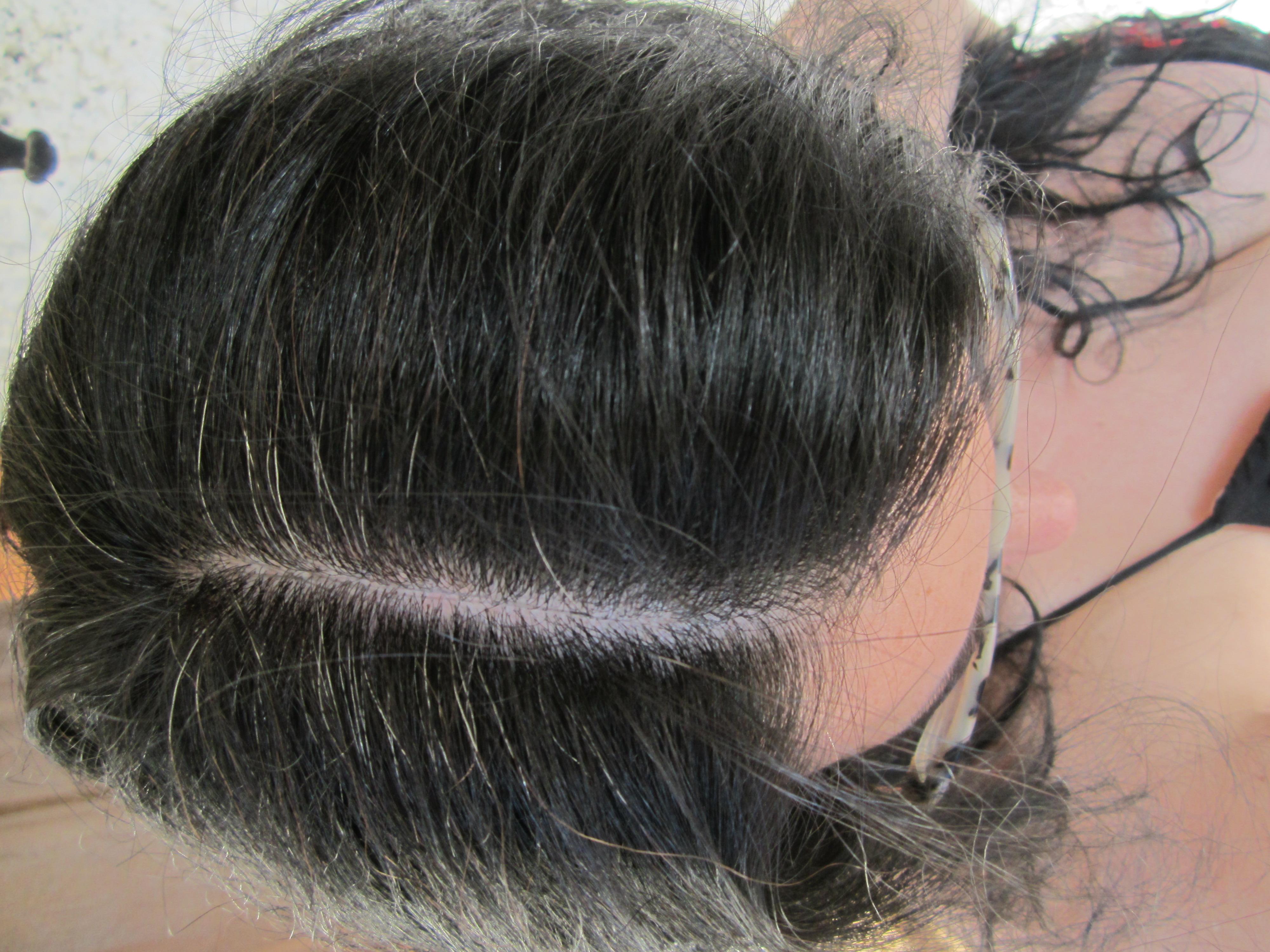 El aceite bate a la caída de los cabello las revocaciones
